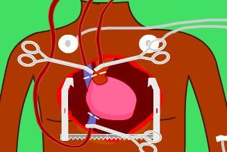 Kalp Nakli Ameliyatı Oyunu