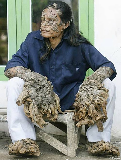 tree man after. Dede Koswara the tree man