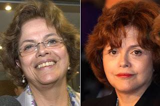 Dilma antes e depois da cirurgia plástica