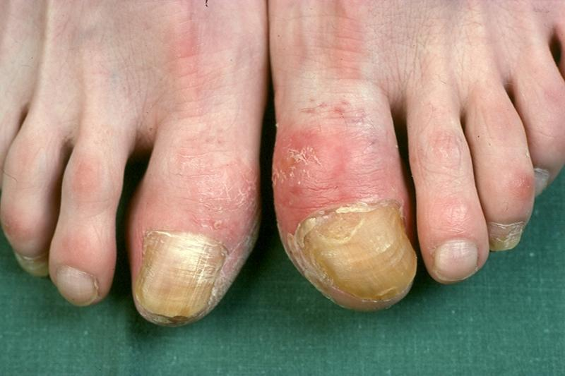 Fair Queens: Onychogryphosis (Thickened nails)