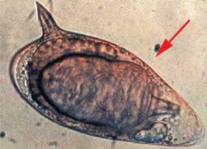 Como parasitas de olhada de peixe