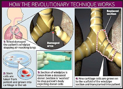 A Stem Cell First- New Organ Created and Transplanted Using Adult Stem Cells