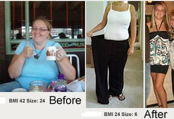 http://3.bp.blogspot.com/_ijU8xX9PNM4/SmEp5QSiiwI/AAAAAAAAHIs/J9jUe3J0SIs/s400/me-before-and-after-weight-loss.jpg