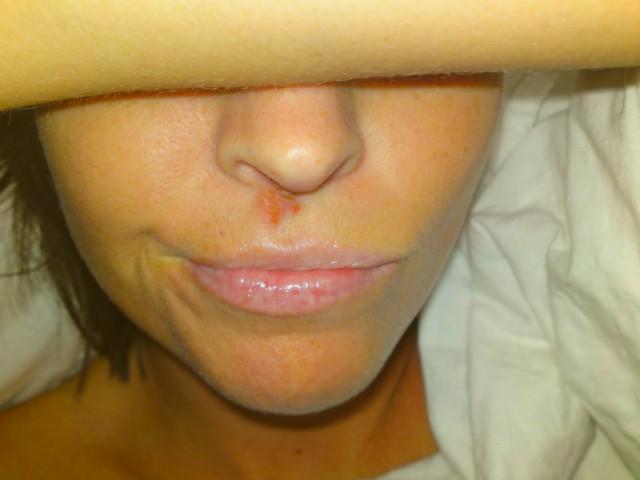 sår under näsan