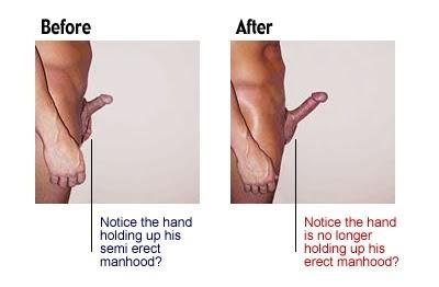 Penis exercise enlargement surgury