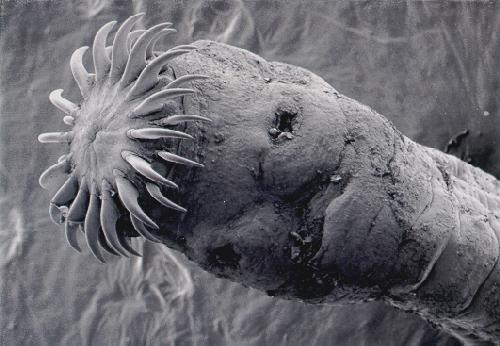 паразиты в организме лямблии