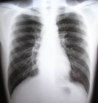 Healthy Lungs X-ray