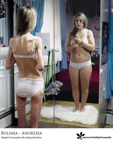 [anorexia-y-bulimia1.jpg]