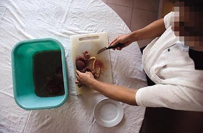 Chinese eat Baby 高師傅處理起胎嬰熟練不帶感情,二十年來,他已親手處理過五、六十個胎嬰.jpg