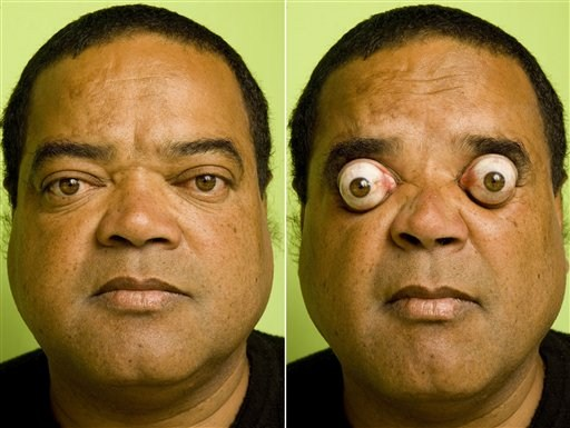 Guinness World Record Popping Eyes Out