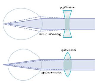 கண் - Anatomy  Refractive+errors2
