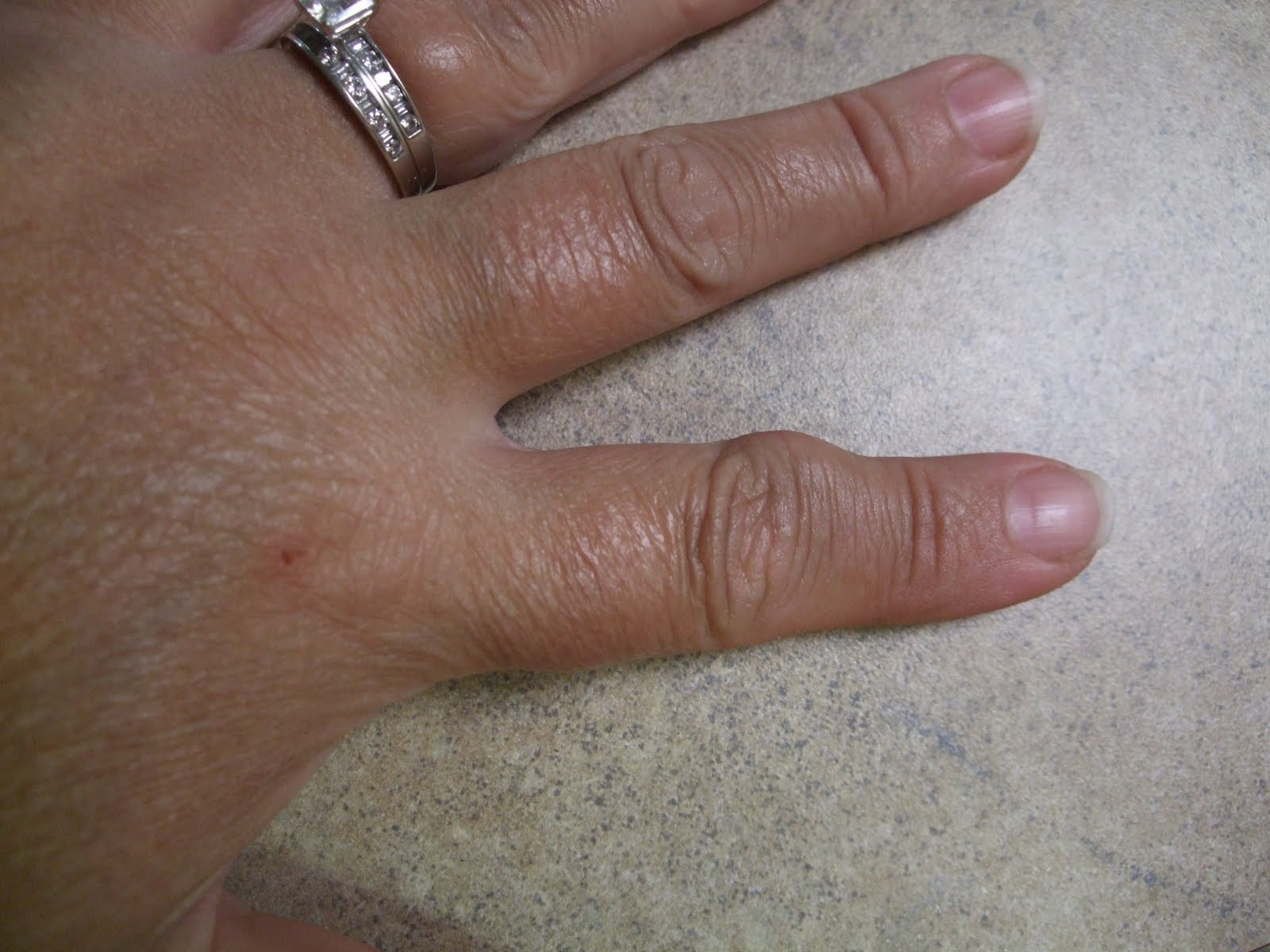 Swelling In Ring Finger Joint