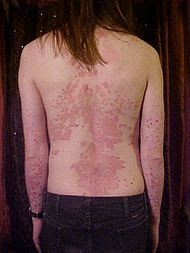 red scally patches of skin caused by psoriasis