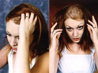 trichotillomania the compulsive hair pulling disorder Trichotillomania, or hair-pulling disorder, is a compulsive urge to pull out one's own hair learn how to help your child deal with trichotillomania.