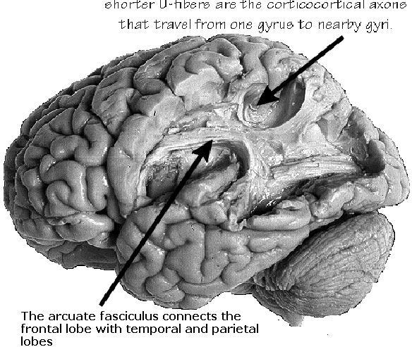 Aphasia, Conduction; Aphasia, Associative; Dysphasia, Associative ...