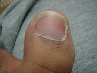 treat care for nail crack