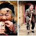 "Chinesa de 101 anos desenvolve ""chifre"" na testa"
