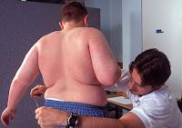niño obeso gallego