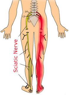 Sciatica Leg Pain is one symptom that is helped by Non surgical spinal decompression