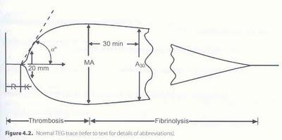 Pedi cardiology: Thromboelastogram (TEG) - Result interpretation: pedicardiology-bala.blogspot.com/2009/11/thromboelastogram-teg...