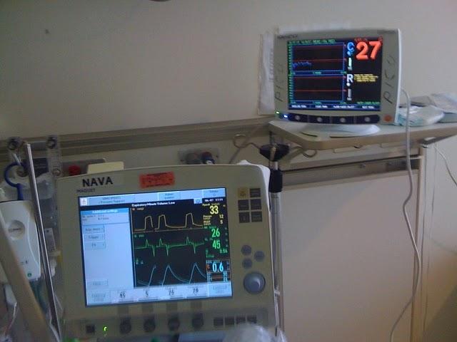 Pedi cardiology: ICU: Monitor - NIRS reading low