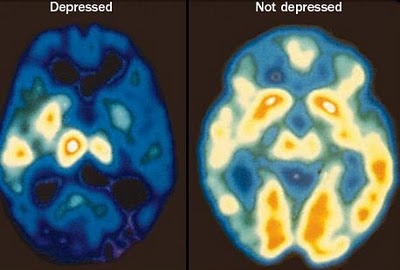 depressed brain and non depressed brain