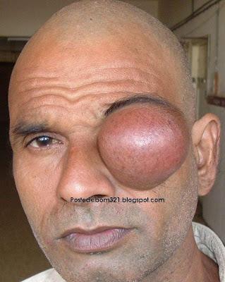 Tumor Besar Di Atas Mata !