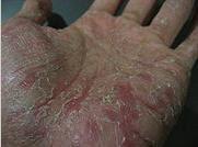 dyshidrotic hand eczema