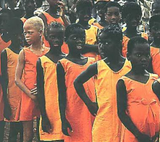 Fille noire Albinos