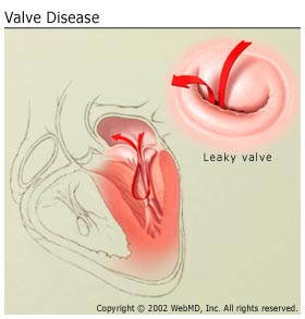 heart valve disease: cause and possible symptoms