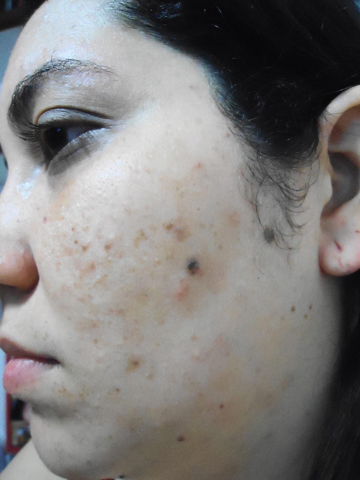 Come togliere un tempo su una faccia a pelle secca