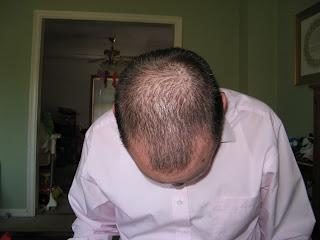my blad head
