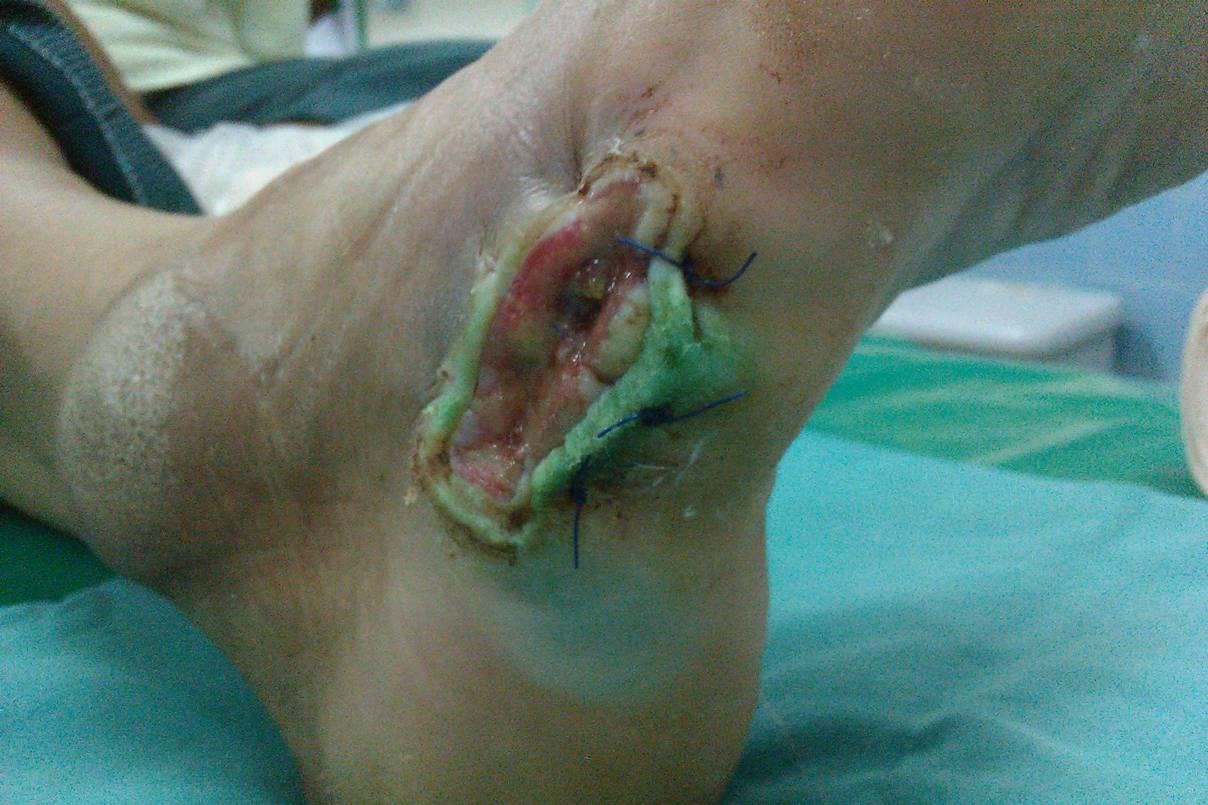 Pseudomonas infection - Wikipedia