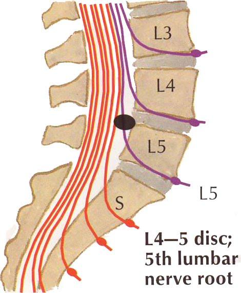 L5 s1 listhesis