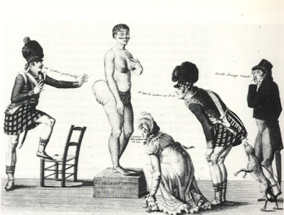 Hottentot Venus was exploited as a freak in Paris and elsewhere in Europe in 1810.  Her bones remained on display at a French museum until fairly recently.