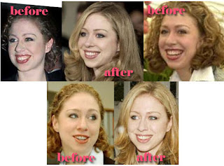 Chelsea Clinton is the more attractive than ever daughter of Senator Hillary Clinton and former President Bill Clinton