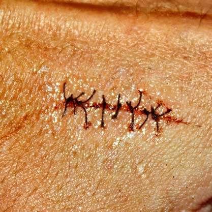 Как сделать раны на коже