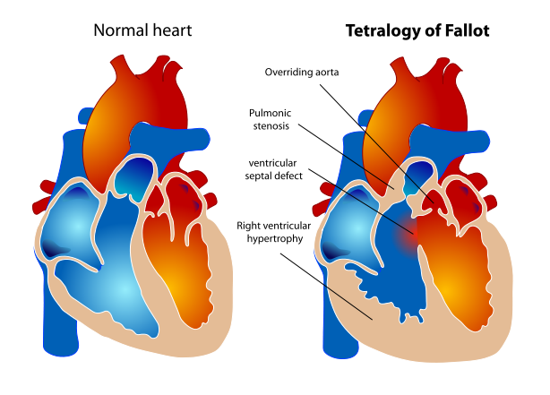 simple diagram of heart and lungs mediconotebook tetralogy of fallot