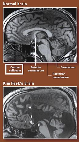 savant syndrome and kim peek Ez a fájl a wikimedia commonsból származik az alább látható leírás az ottani dokumentációjának másolata a commons projekt szabad licencű kép- és multimédiatár.