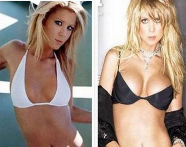 Celebrities Before and After Breast Implants ~ Damn Cool Pictures