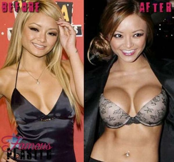 Brighton Beach: Celebrities Before and After Breast Implants