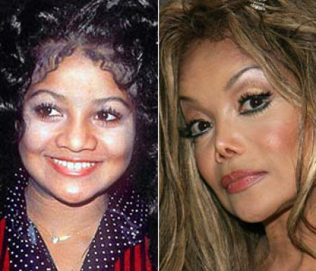 Brighton Beach: Celebrity Nose Job Before and After