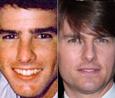 Celebs Before and After nose plastic surgery Seen On  www.coolpicturegallery.us