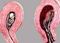 A una mujer le puede llegar el periodo estando embarazada
