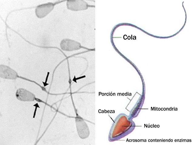 Есть ли в смазке спермотозоиды