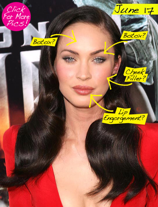 megan fox plastic surgery before and after 2011. images Megan Fox golden globes