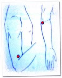 Новое Лекарство От Ревматоидного Артрита
