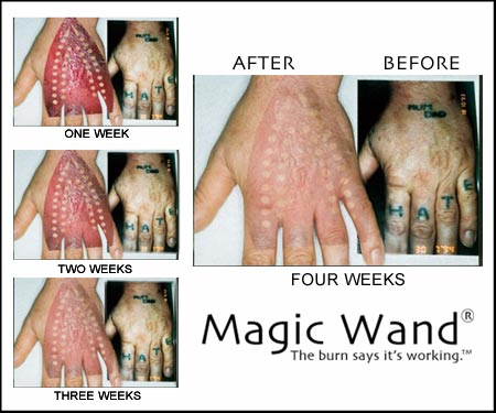 3 Best Tattoo Removal