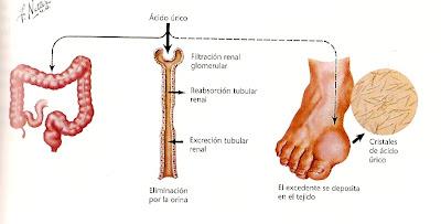 pueden ser las nueces perjudiciales para el acido urico acido urico en mujeres sintomas acido urico dedo gordo