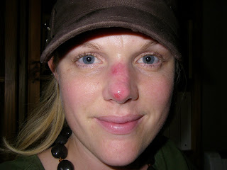 Red Bump On Nose Won't Go Away